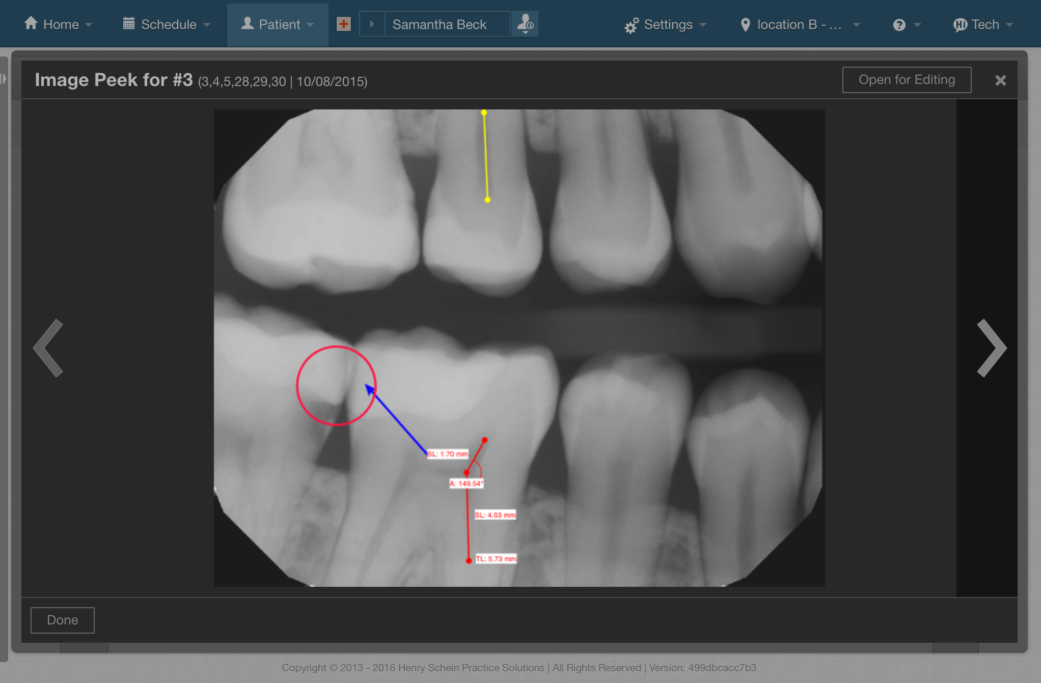 Screenshot of Dental X-Ray